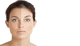Skin Consultation - Visia Digital Skin Analysis System